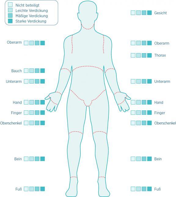 Hautdicke-Messung