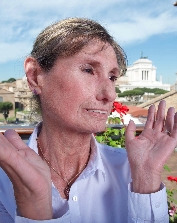 scleroderma patient grazia
