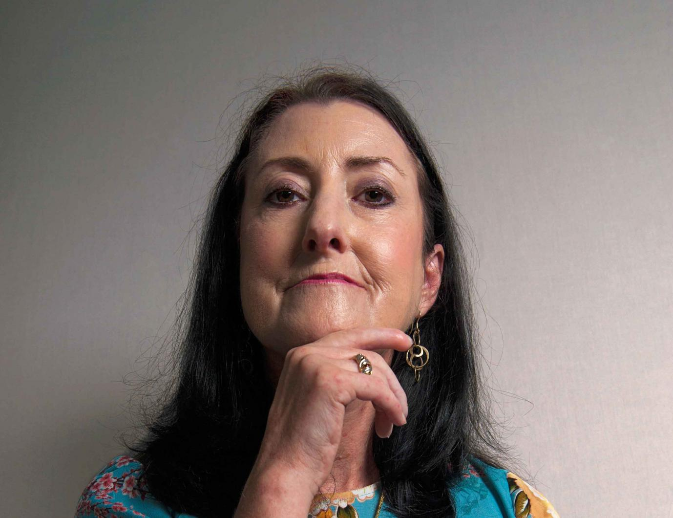 Woman with scleroderma posing