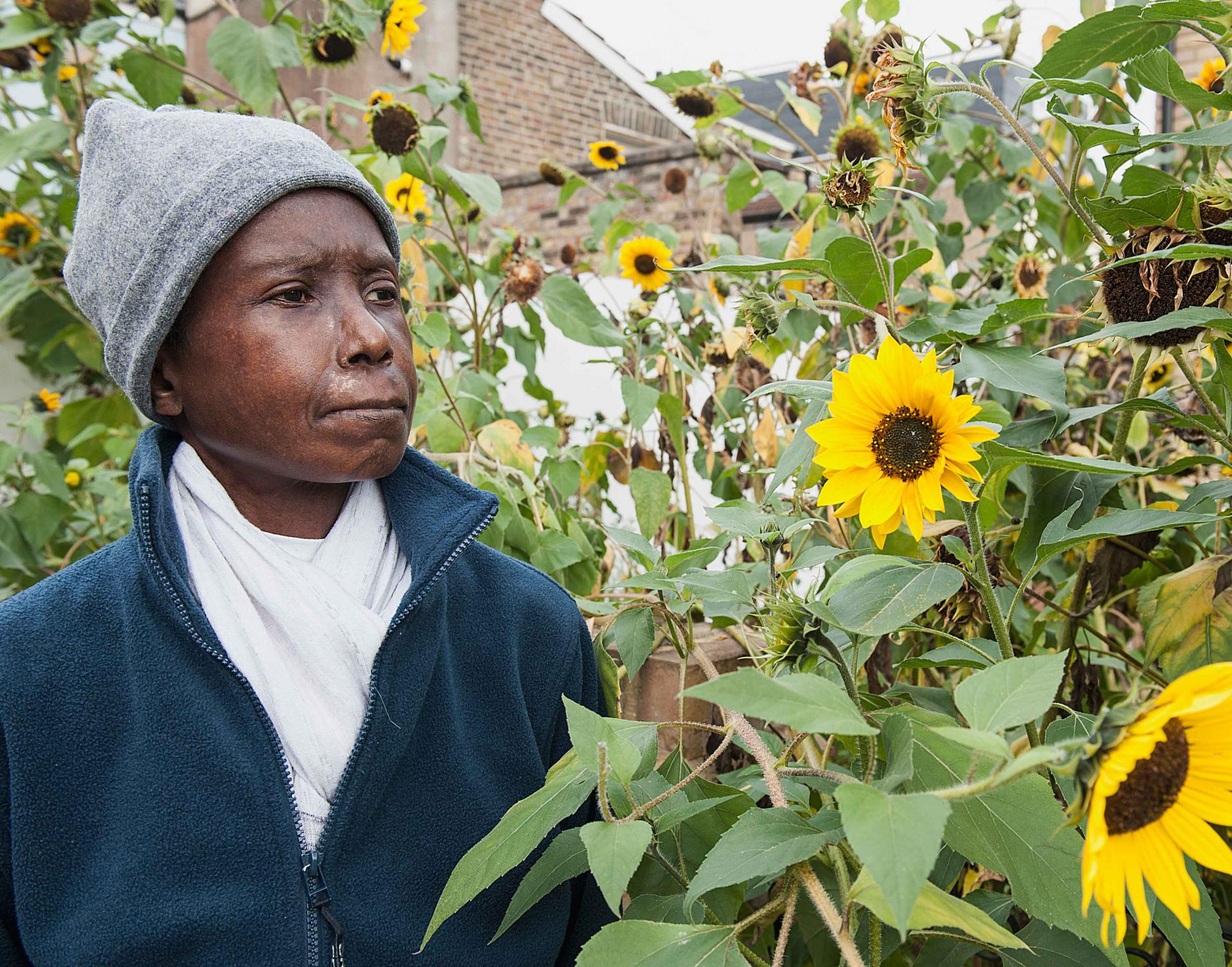 Doris, a scleroderma patient with sunflowers