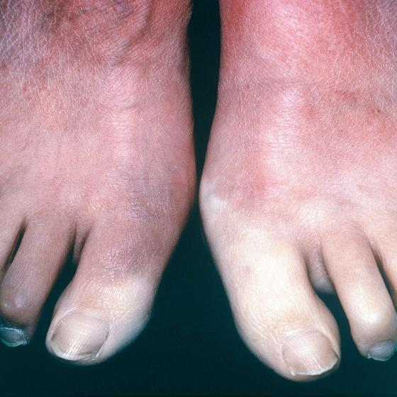 Feet showing scleroderma symptom of Raynaud's phenomenon, reducing blood supply to toes
