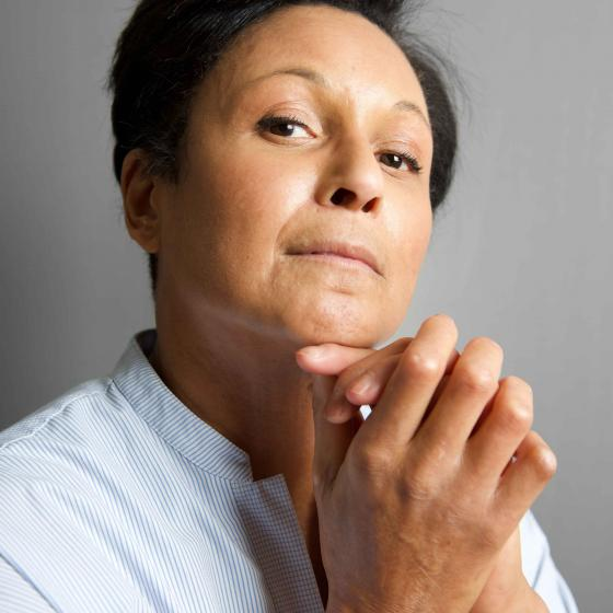 Woman showing scleroderma joint and skin symptoms, focusing on hands