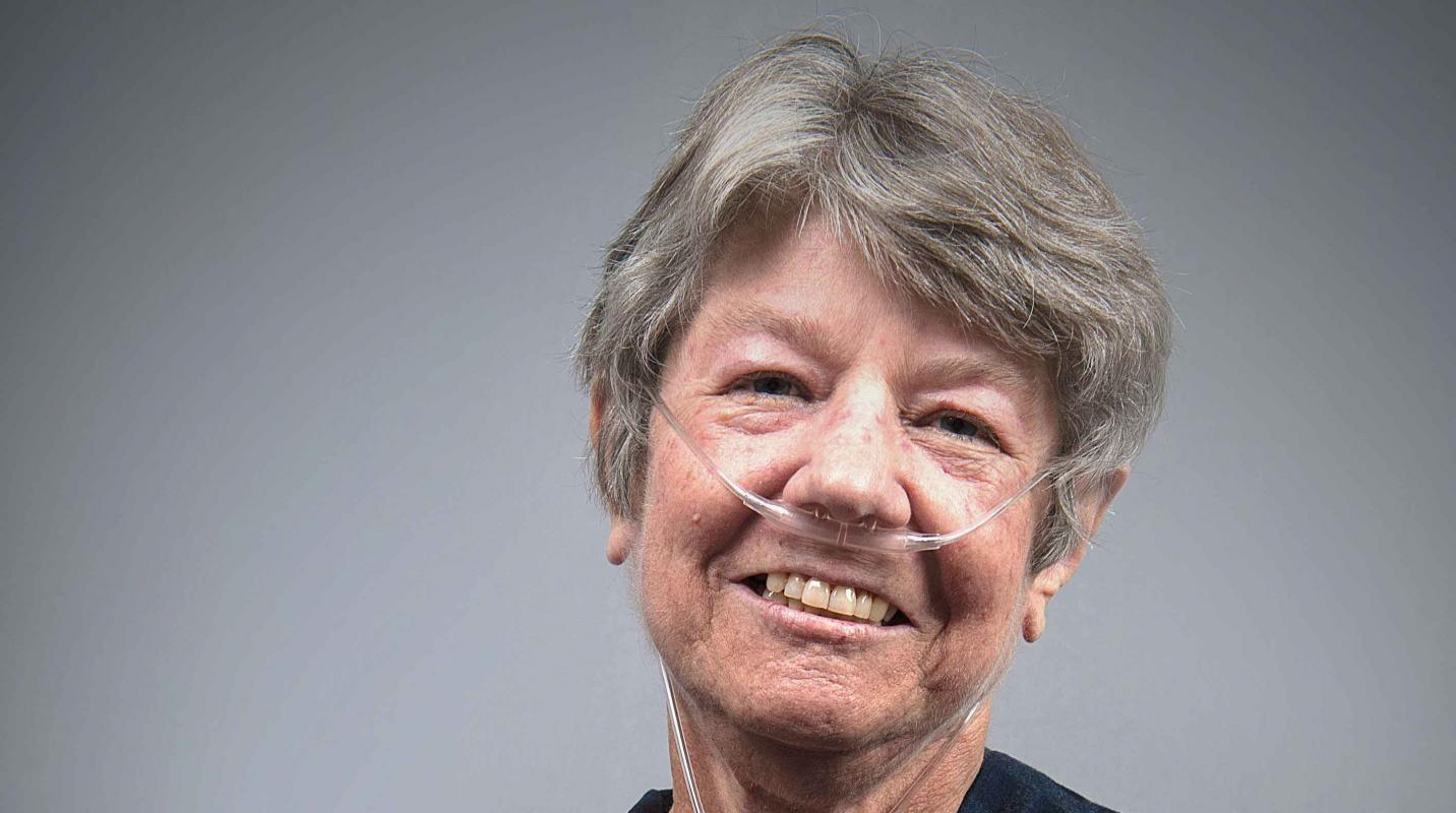 Woman with scleroderma smiling